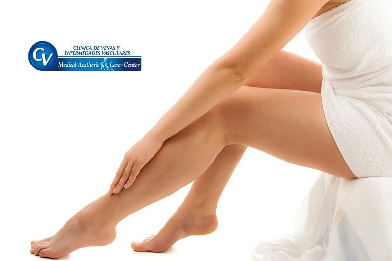 ¿Cómo evitar las varices en las piernas?